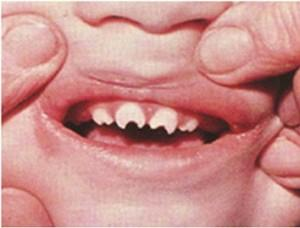 Mulberry molars are a dental condition usually associated with ...